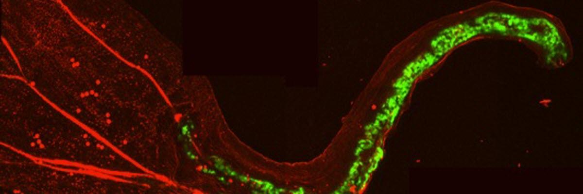 Courtesy of Kaoru Sugimoto, senior research fellow with Elliot Meyerowitz - green fluorescent protein in petal